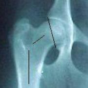 Csípőízületi diszplázia, 3. ábra